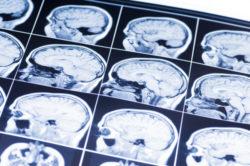 brain injury lawyer scotch plains nj